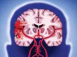 Ишемический инсульт — все возрасты покорны