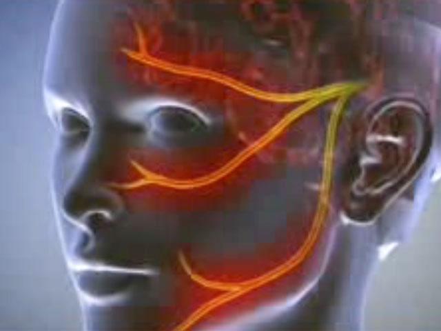 Болезни нервной системы: невралгии