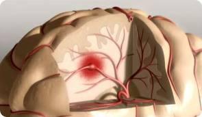 Инсульт и его последствия: зачем нужна профилактика?