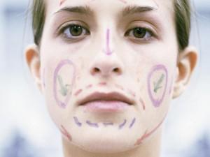 Блефаропластика – красота и молодость глаз