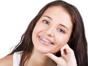 Польза зубных брекетов