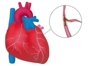 Новые артерии для предотвращения инфаркта