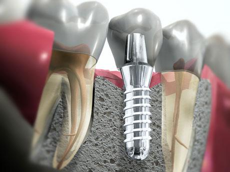 Быстрый и эффективный способ восстановления зубов