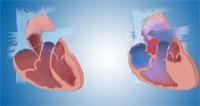 Восстановление недостающей части у детей, родившихся с половиной сердца