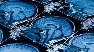 Травматическое поражение головного мозга: секреты излечения