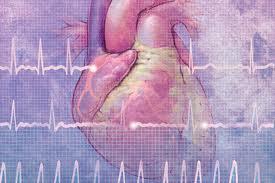 Фибрилляция, или мерцание, желудочков
