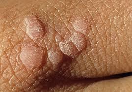 Вирус папилломы человека – что это?