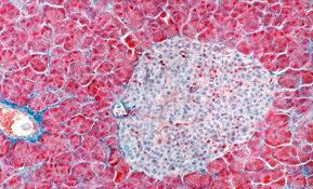 Мышцы и кровеносные сосуды заменят гидрогелем