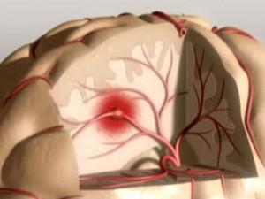 Советы по профилактике инсульта