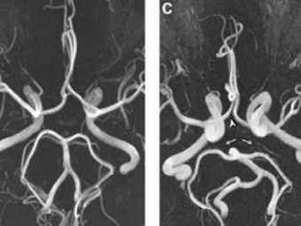 У страдающих мигренью обнаружили неполный виллизиев круг