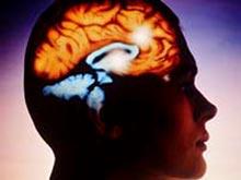Врожденные патологии сосудов мозга стоят за приступами мигрени