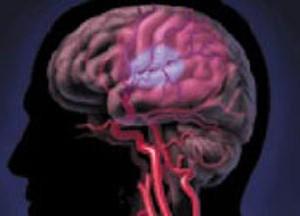 Низкое диастолическое кровяное давление иметь связь с атрофией мозга