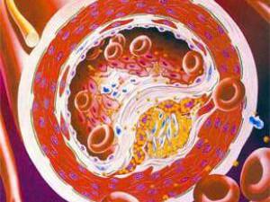 Хороший холестерин не защищает сердце