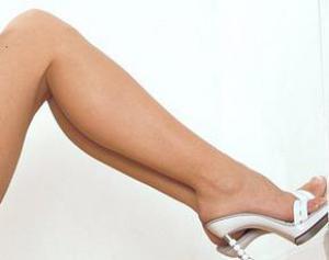 Варикозное расширение вен — лечение и профилактика