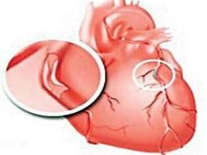 Инфаркт миокарда: время + деньги