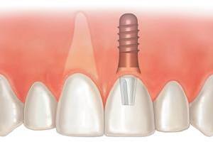 Качественная имплантация зубов в клинике «Первый доктор»