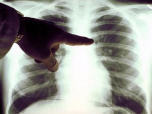 Народные методы лечения эмфиземы лёгких