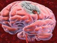 Мочевая кислота может снизить вероятность инвалидизации после инсульта