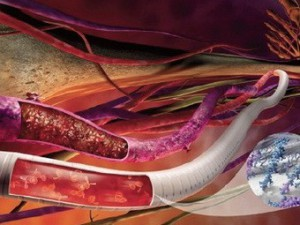 Сосуды защитили от тромбов в области имплантата
