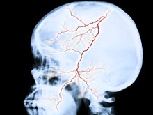 Врачи выяснили, как остановить процесс повреждения мозга, вызванный инсультом