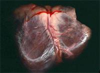 Вот почему чаще всего инфаркты случаются по утрам