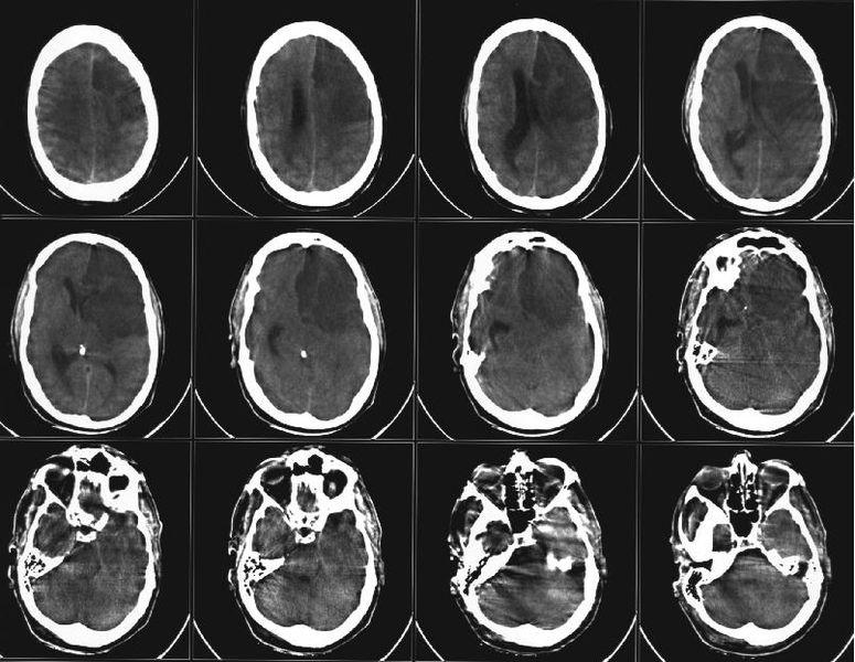 Предложен эффективный метод лечения ишемического инсульта