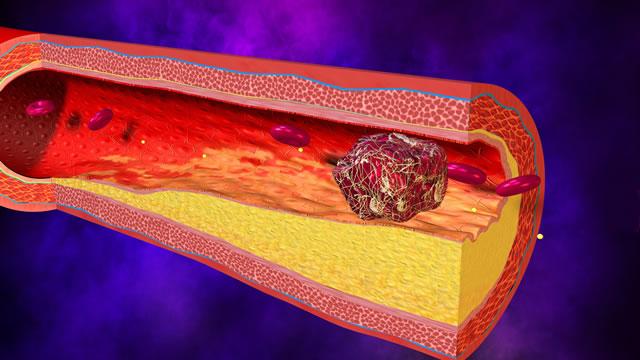 Тромбозы артерий, симптомы, лечение