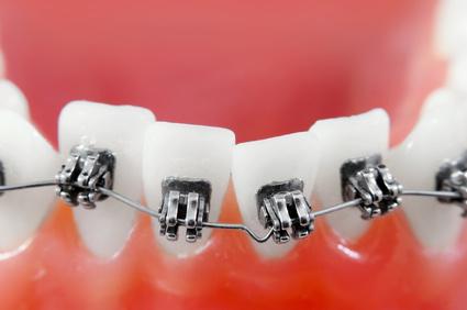 Эстетическая ортодонтия