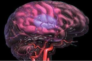Вторичная профилактика ишемического инсульта как нерешенная проблема