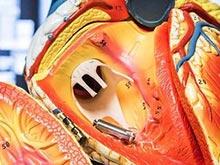 «Электронная таблетка» заменяет громоздкие кардиостимуляторы