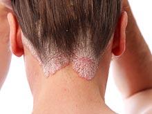 Заболевание кожи увеличивает вероятность смерти от проблем с сосудами