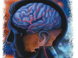 Как определить симптомы инсульта