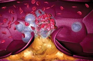 Тромбы образуются под влиянием генов