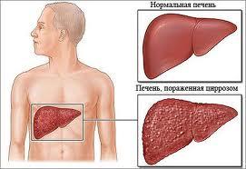 Опасность цирроза печени