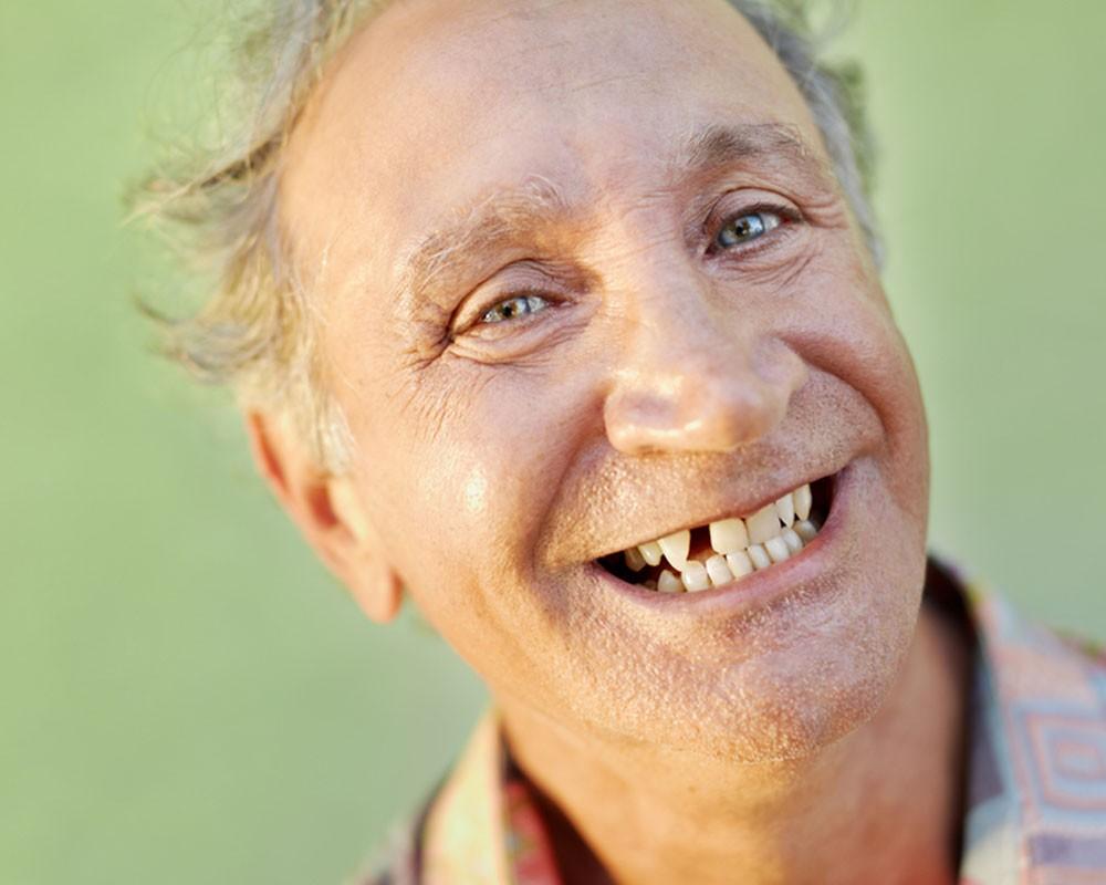 Потерю зубов связывают с когнитивными и физическими нарушениями у пожилых людей