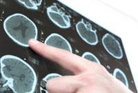 Найдена новая цель для медикаментозного лечения последствий инсульта