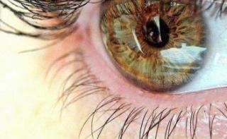 Сосуды глаза могут показать, кого ожидает инсульт