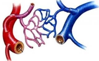 Создано «микроустройство» для «латания» кровеносных сосудов