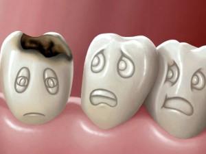 Кариес временных зубов у детей
