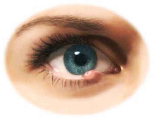 Ячмень на глазу, как лечить?