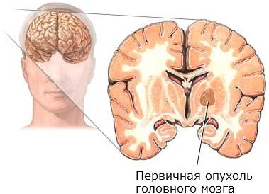 Причины рака головного мозга