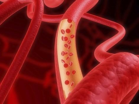 Лечим сосуды: артерии, капилляры, вены