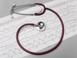 Кардиореабилитация после инфаркта