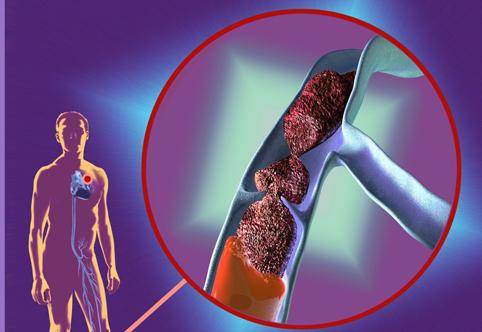 Тромбозы вен и эмболия — причины, методы профилактики и лечения