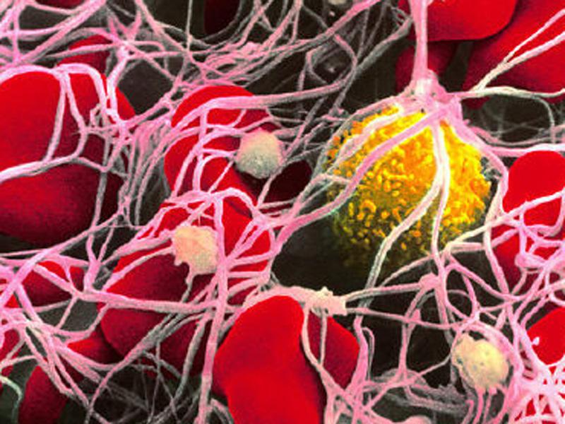 В Европе разрешена методика лечения при помощи стволовых клеток