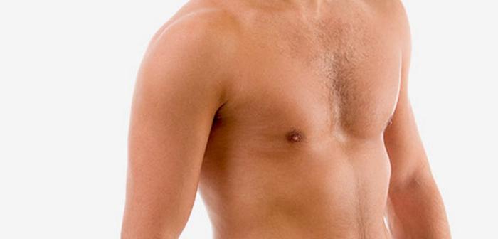 Операции по уменьшению груди становятся все популярнее у мужчин