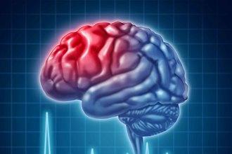 Развеяны все мифы об инсульте