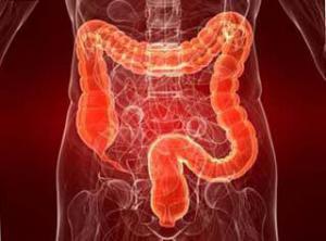 Микрофлора кишечника покажет, каков риск атеросклероза и инсульта
