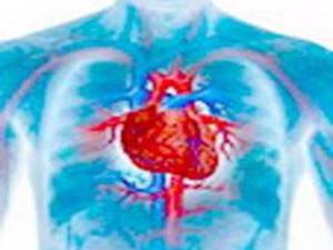 Неподдающаяся лечению анемия – признак сердечного приступа в будущем.