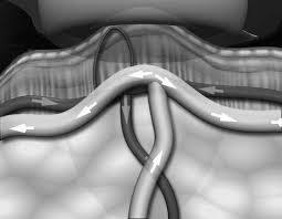 Атеросклероз сосудов: остановить, заставить отступить